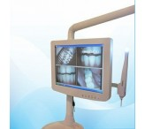 15inch medical grade dental monitor white color for Dental chair