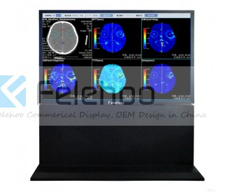 110 inch 8M Consultation Center Medical Display