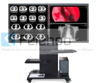 70 inch Medical Consultation Center Display