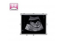Ultrasound Image Display